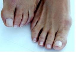 Webinar: Praxissprechstunde Fußnagelschnitt