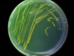 Webinar: Infektiologie