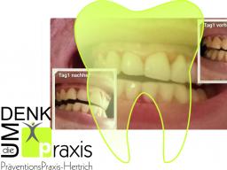 Webinar: Zähne gut - Alles gut?