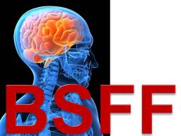 Webinar: Endlich! BSFF fürs Selbstcoaching
