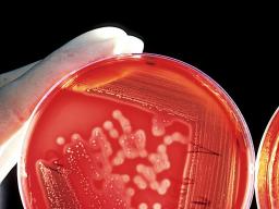 Webinar: Hygiene: Gestaltung der Folgebelehrung nach IfsG