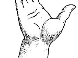 Webinar: Angststörungen: Handdiagnose und Therapiemöglichkeiten