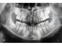 Webinar: Dentales Röntgen(1-2): Fehlervermeidung durch Fehleranalyse