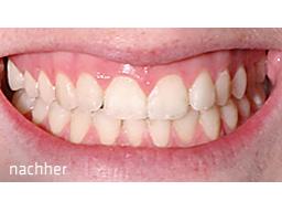 Webinar: Gesundheit beginnt im Mund