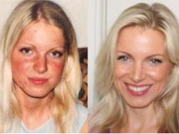Webinar: Der natürliche Weg zu schöner Haut