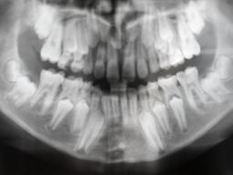 Webinar: Dentales Röntgen für Praxisteams (1-2)